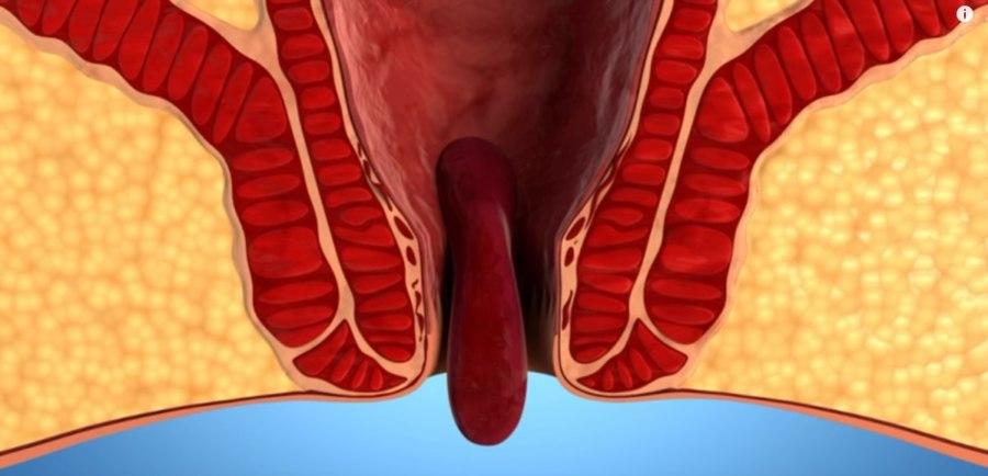 3 стадия геморроя - выпадание узлов