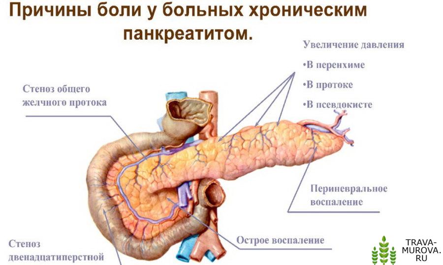 Статистика при хроническом панкреатите